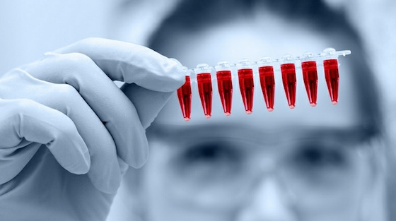 blood test for heavy metals