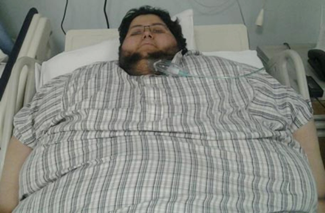 Al Dossary Obesity in Saudi Arabia